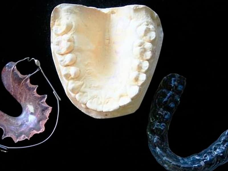 Ventajas de una ortodoncia invisible