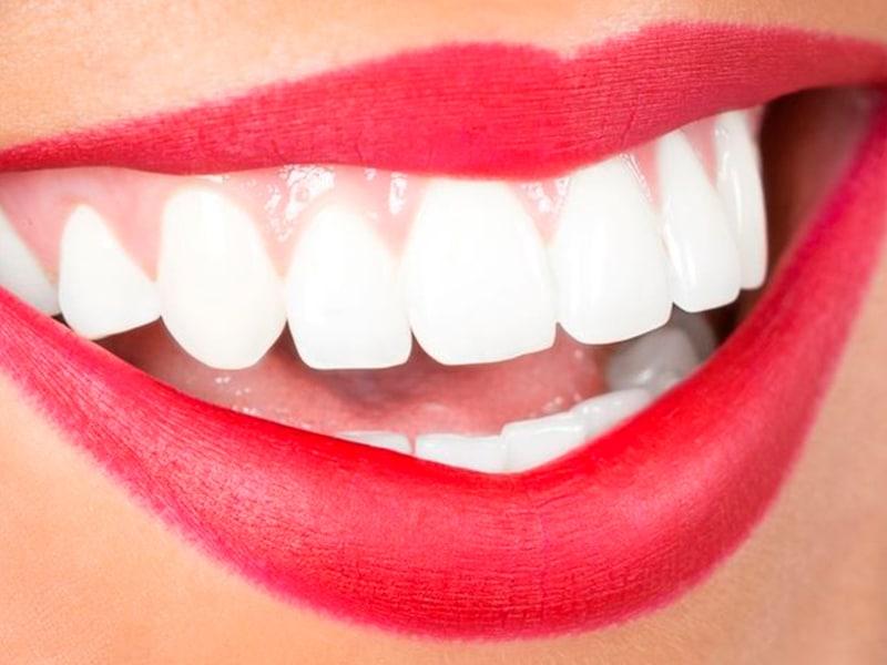 Consejos para una sonrisa sana y bonita