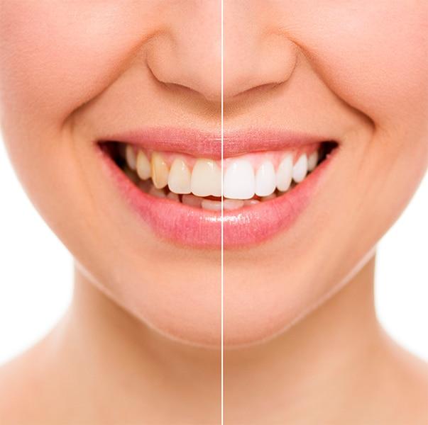 Bazal Dentistas